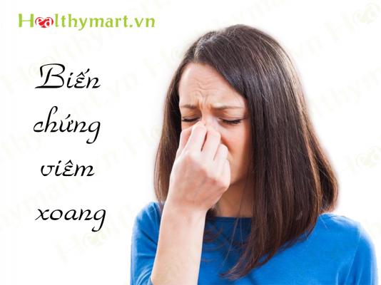 Nếu có các triệu chứng này, chắc chắn bạn đã mắc bệnh viêm xoang