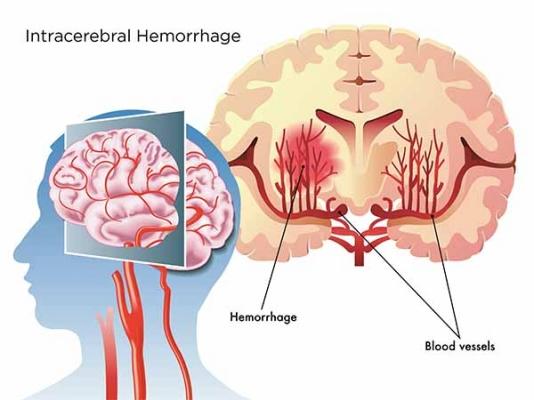 Đột quỵ do xuất huyết não