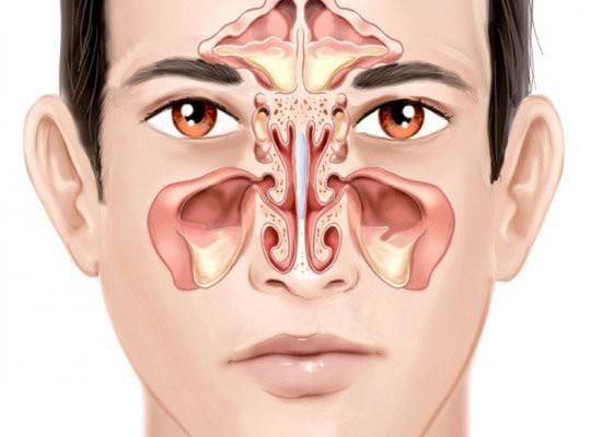 Tất tần tật các vấn đề về bệnh viêm xoang P2 : Nguyên nhân, cách phòng và điều trị bệnh
